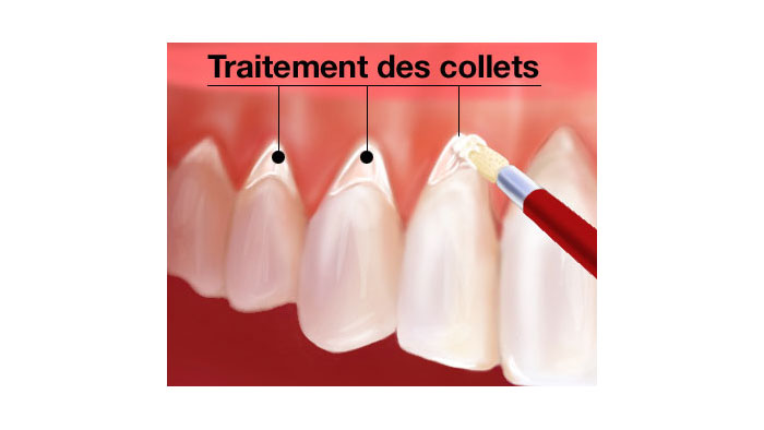 Traitement des collets